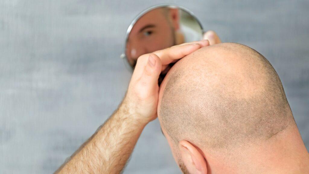 hair loss product